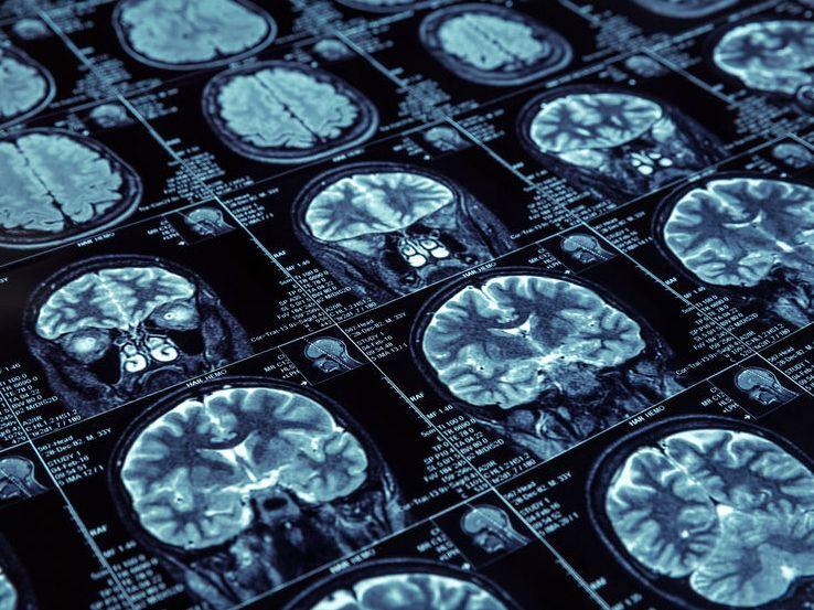米Lilly社、アルツハイマー病に対する抗Aβ抗体の第2相で症状改善とアミロイド斑減少